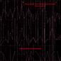 Beton-Studie / Zeitmass fur funf Holzblaser / Klavierstuck XI